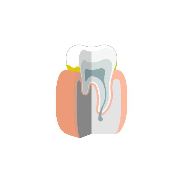 Parodontitis  Plaque