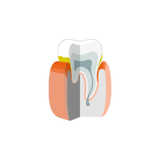 Parodontitis  Zahnstein mit entzündetem Zahnfleisch