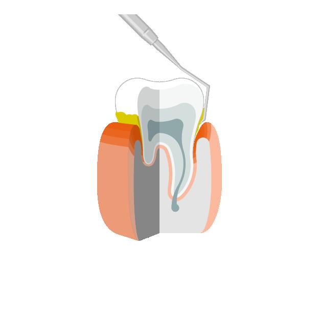 Parodontitis  Entfernung von Zahnstein und Plaque