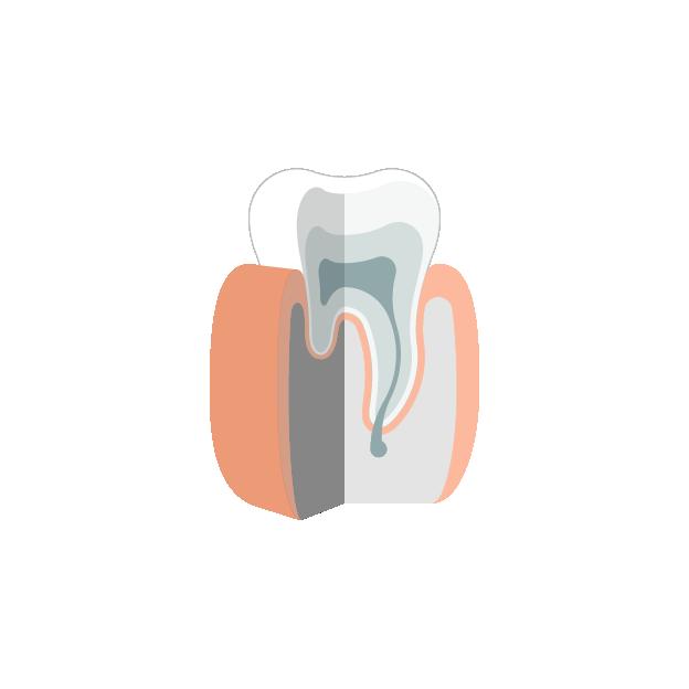 Karies  Gesunder Zahn