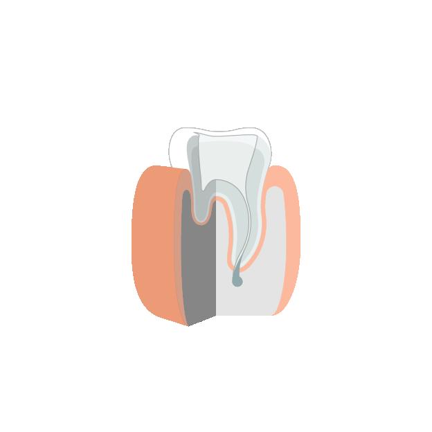 Prothetik | Kronen und Brücken  Geöffneter und für die Krone angepasster Zahn mit gereinigtem Wurzelkanal