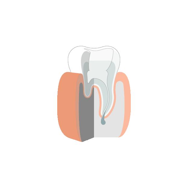 Endodontie  Reinigung des Wurzelkanals mit maschinellen Wurzelkanalinstrumenten
