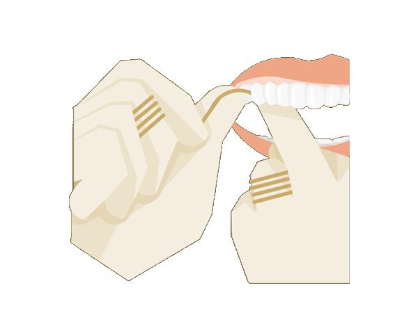 Zahnseide  Zahnseide rechts oben mit einer sanften Sägebewegung seitwärts zwischen zwei Zähne einziehen. Dabei an einen der beiden Zähne andrücken, um das Zahnfleisch nicht zu verletzen.