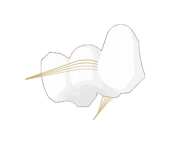 Zahnseide  Sobald die Seide zwischen den Zähnen ist, drücken Sie den Faden gegen den Zahn und schaben solange auf und ab, bis es knirscht. Dann im selben Zahnzwischenraum an den Nachbarzahn ziehen und ebenso verfahren.