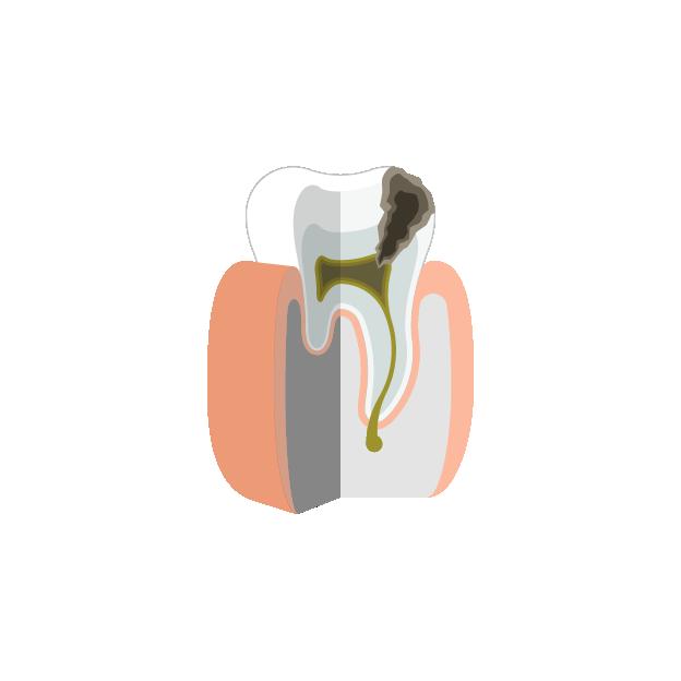 Endodontie  Absterben der Pulpa und Abszess