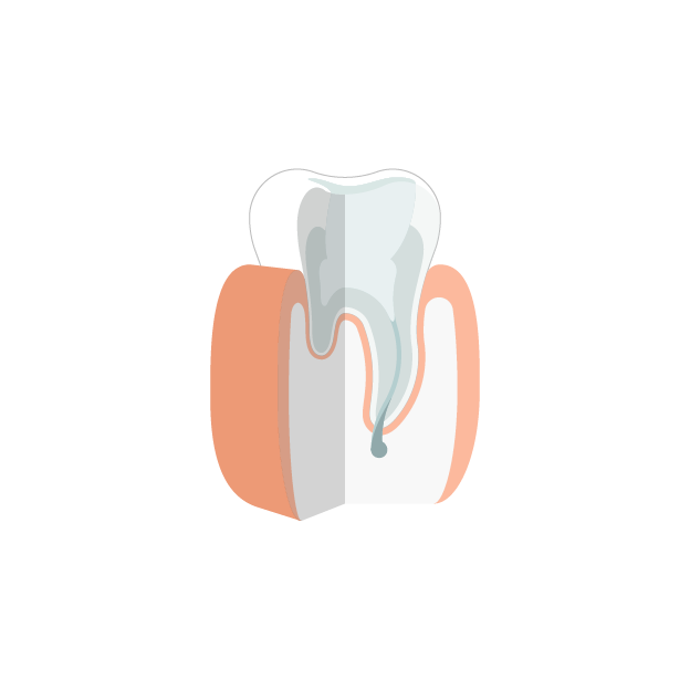 Endodontie  Finale Füllung
