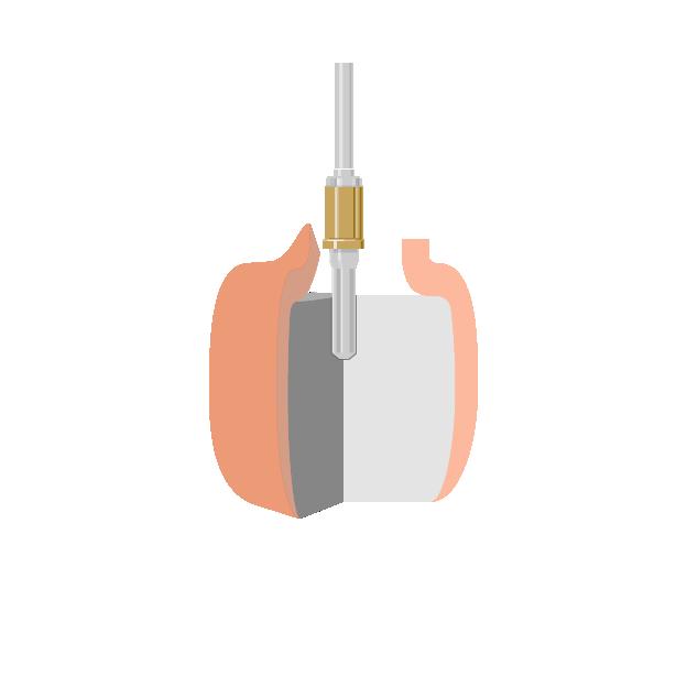 Implantate  Bohrung