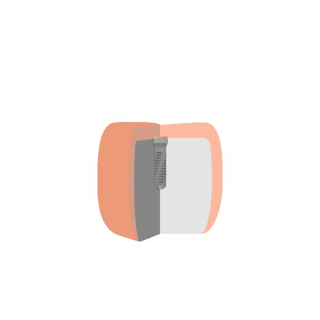 Implantate  Abheilen der Schleimhaut