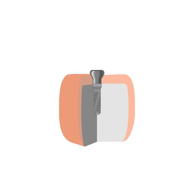 Implantate  Ästhetische Ausformung der Schleimhaut mittels Gingivaformer