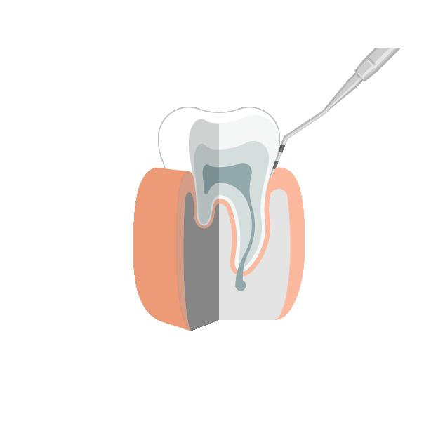 Gingivitis  Gesundes Zahnfleisch