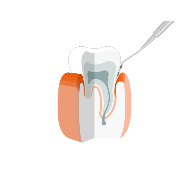 Gingivitis  Entzündetes Zahnfleisch