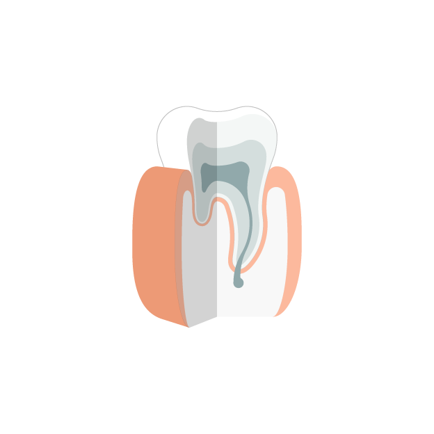 Parodontitis  Gesunder Zahn